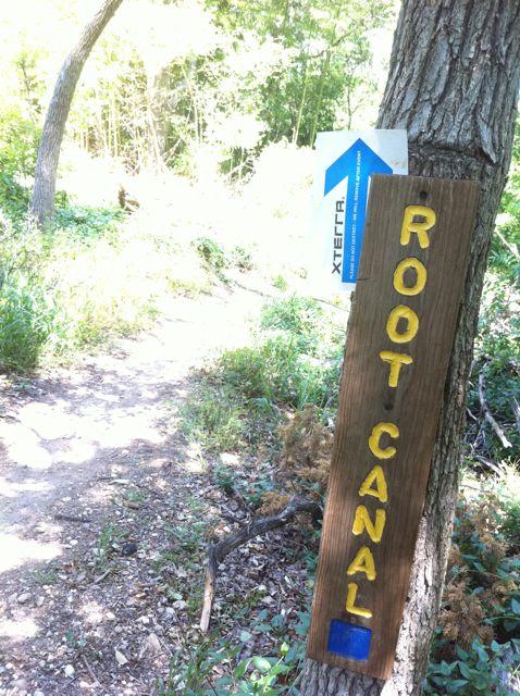 root-canal-waco-texas